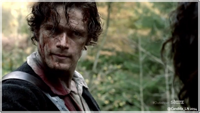 Even bloody, Jamie Fraser (Sam Heughan) is bloody handsome.