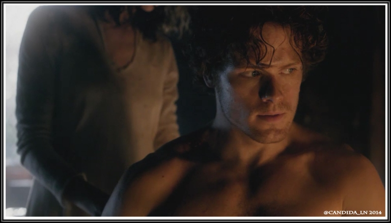 Jamie (Sam Heughan) waits for Claire's (Caitriona Balfe) reaction to the scars on his back.